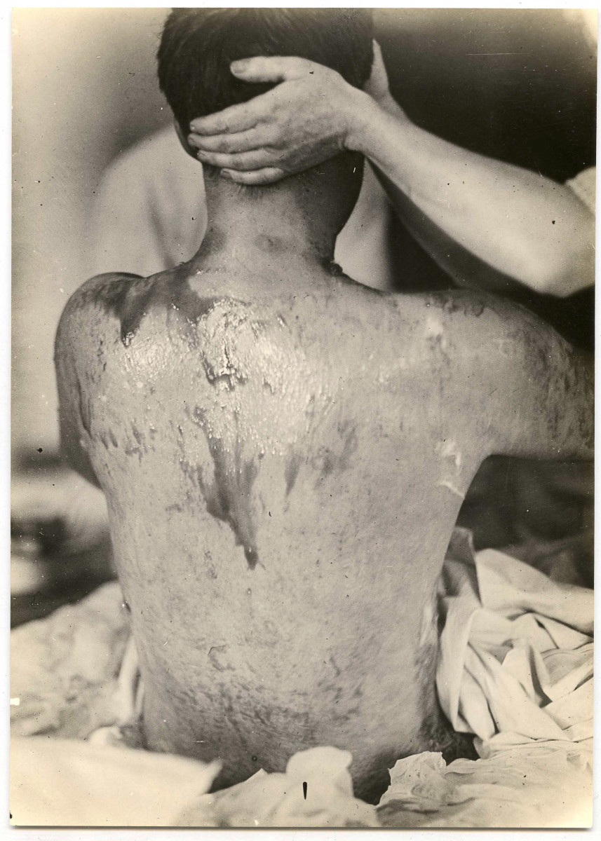 A soldier being treated for mustard gas burns during World War I