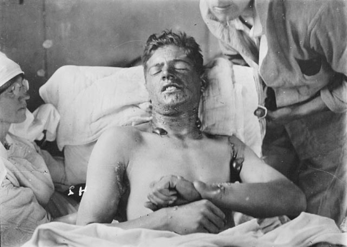 A World War I Canadian soldier being treated for burns caused by poisonous gas.
