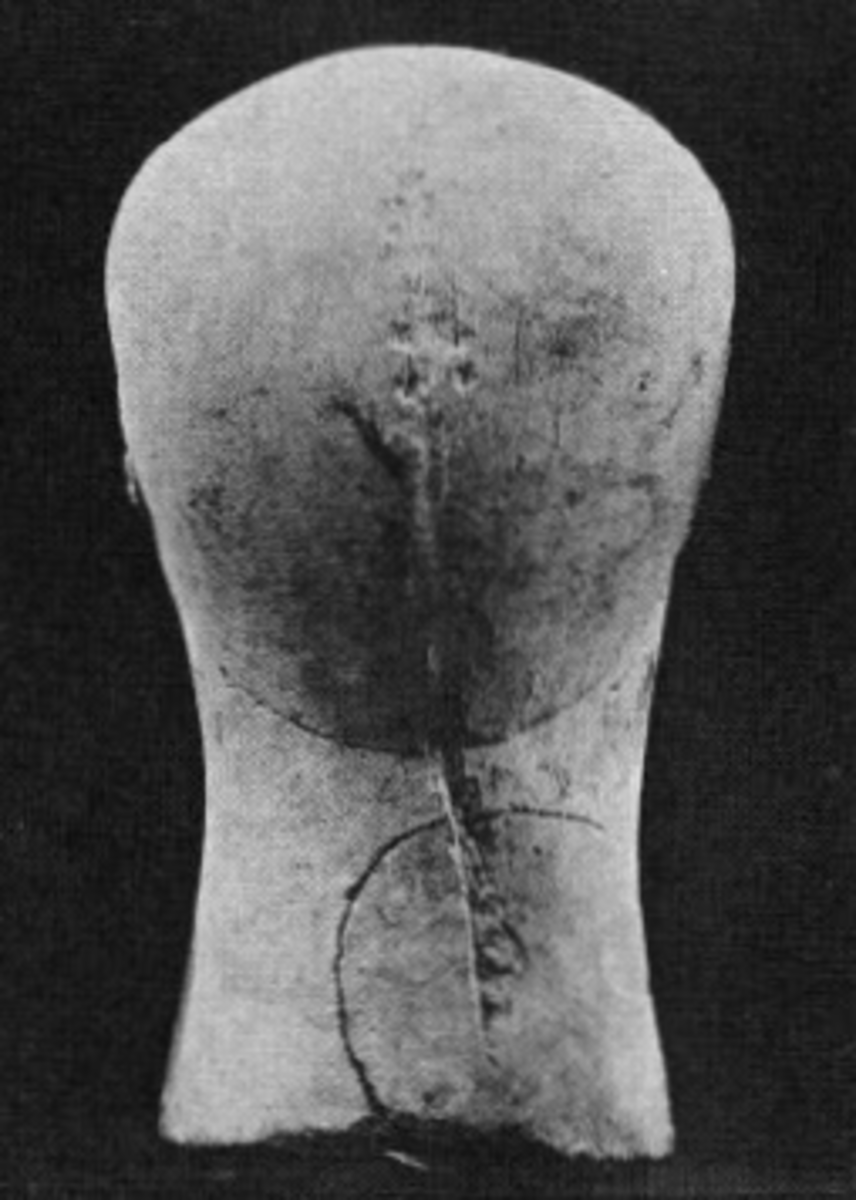 An example of mutilation on the back of the head