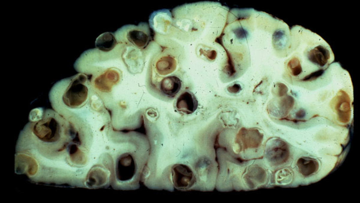 A Tapeworm cyst in the brain