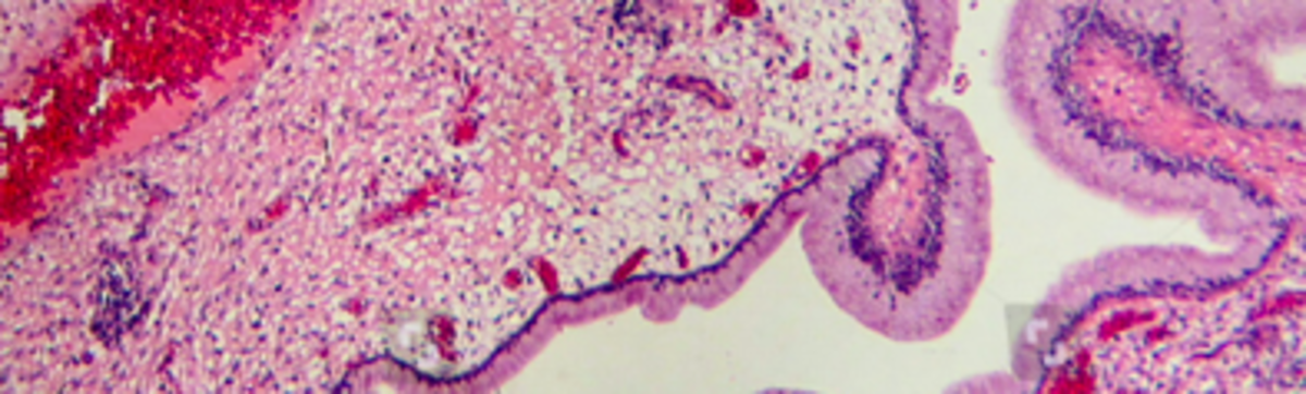 components-of-the-tumor-microenvironment