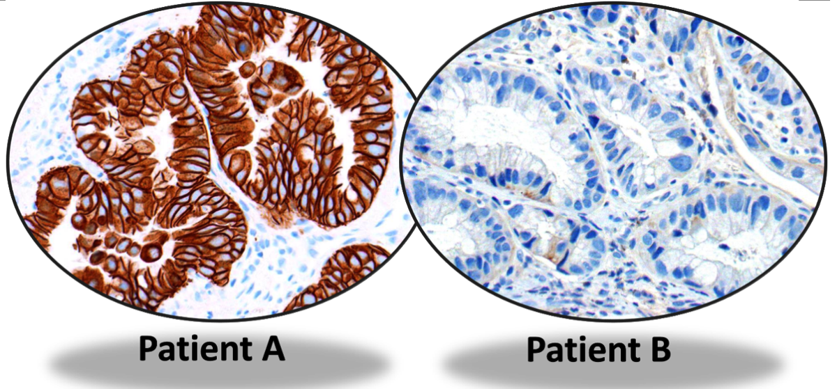 Laboratory tests showing HER-2 positive in breast cancer from patient A but negative from patient B. Anti-HER-2 treatment might be effective for patient A but may not be beneficial for patient B.