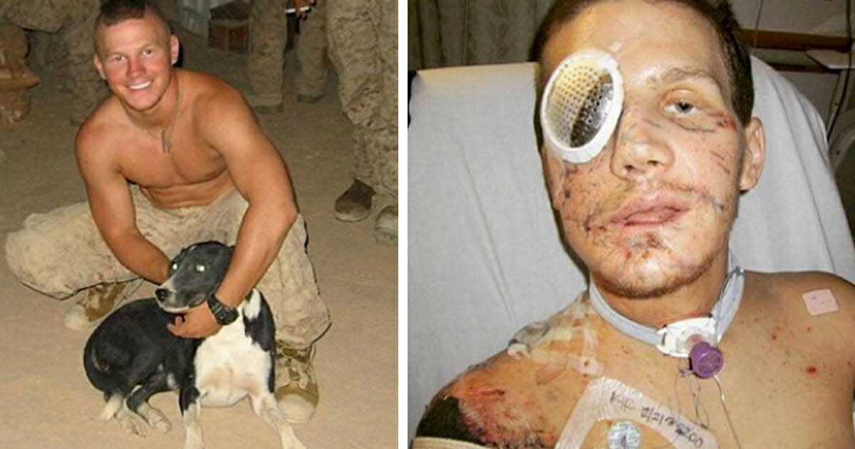Kyle Carpenter sustained serious injuries for his sacrifice.