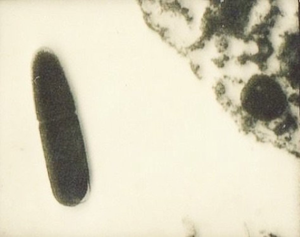 A specimen of Clostridium perfringens