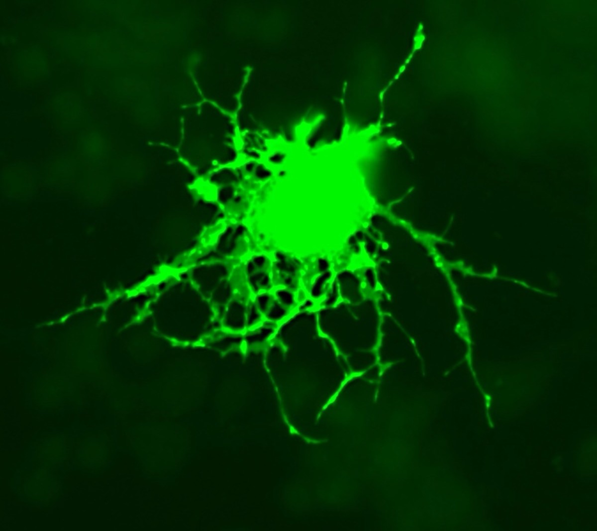 A green fluorescent protein has been added to this oligodendrocyte. Oligodendrocytes make myelin and are destroyed in multiple sclerosis.