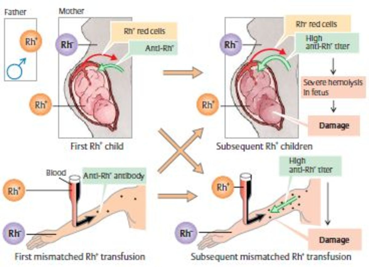 Rh antigen incapability in pregnancy. Source: http://medchrome.com/wp-content/uploads/2012/12/Rh-isoimmunization.jpg