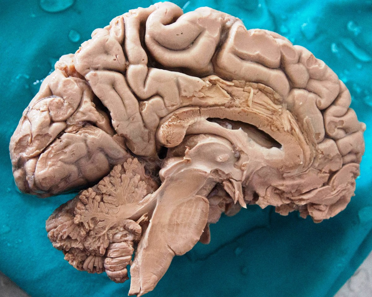 Mother Nature must be really fond of the brain because she's copied it in so many places in the plant and fungal worlds.  The human brain weighs on average 3.3 pounds (1.5 kg).