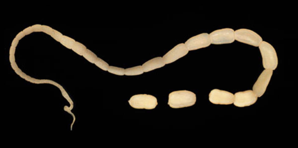 An adult tapeworm. Tapeworm infection is rare in developed countries.