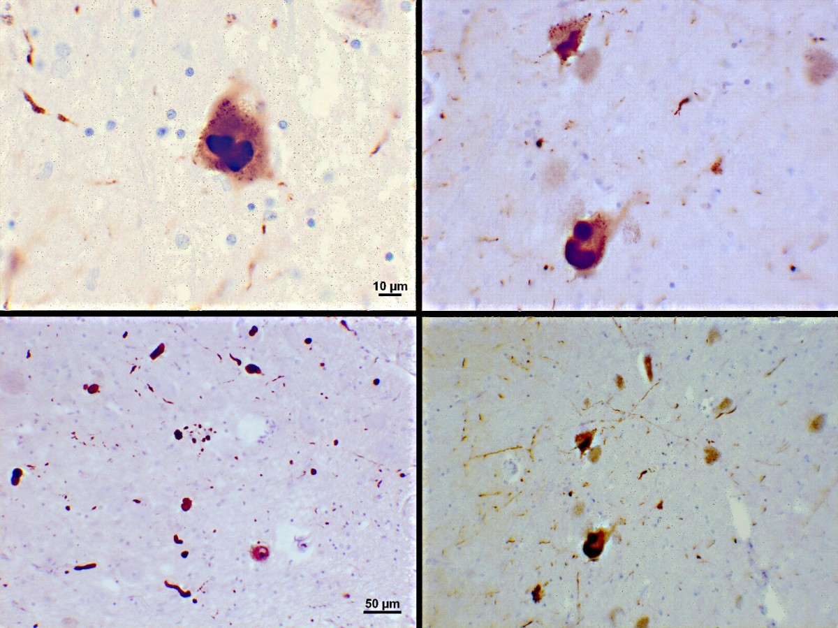 Stained slides showing Lewy bodies (the dark brown patches) in the brain of a Parkinson's disease patient