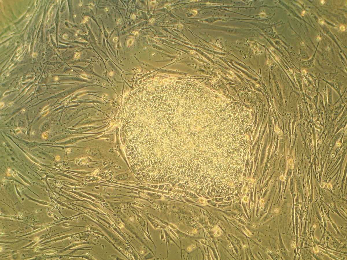 A colony of human embryonic stem cells (in the middle) surrounded by mouse fibroblast cells