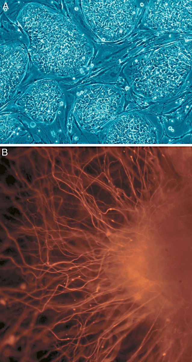 Human embryonic stem cells (A) and neurons derived from the stem cells (B)