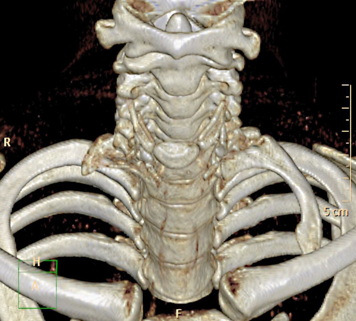 A 3D illustration of two cervical ribs above the normal ribs. One of the cervical ribs is more developed than the other,
