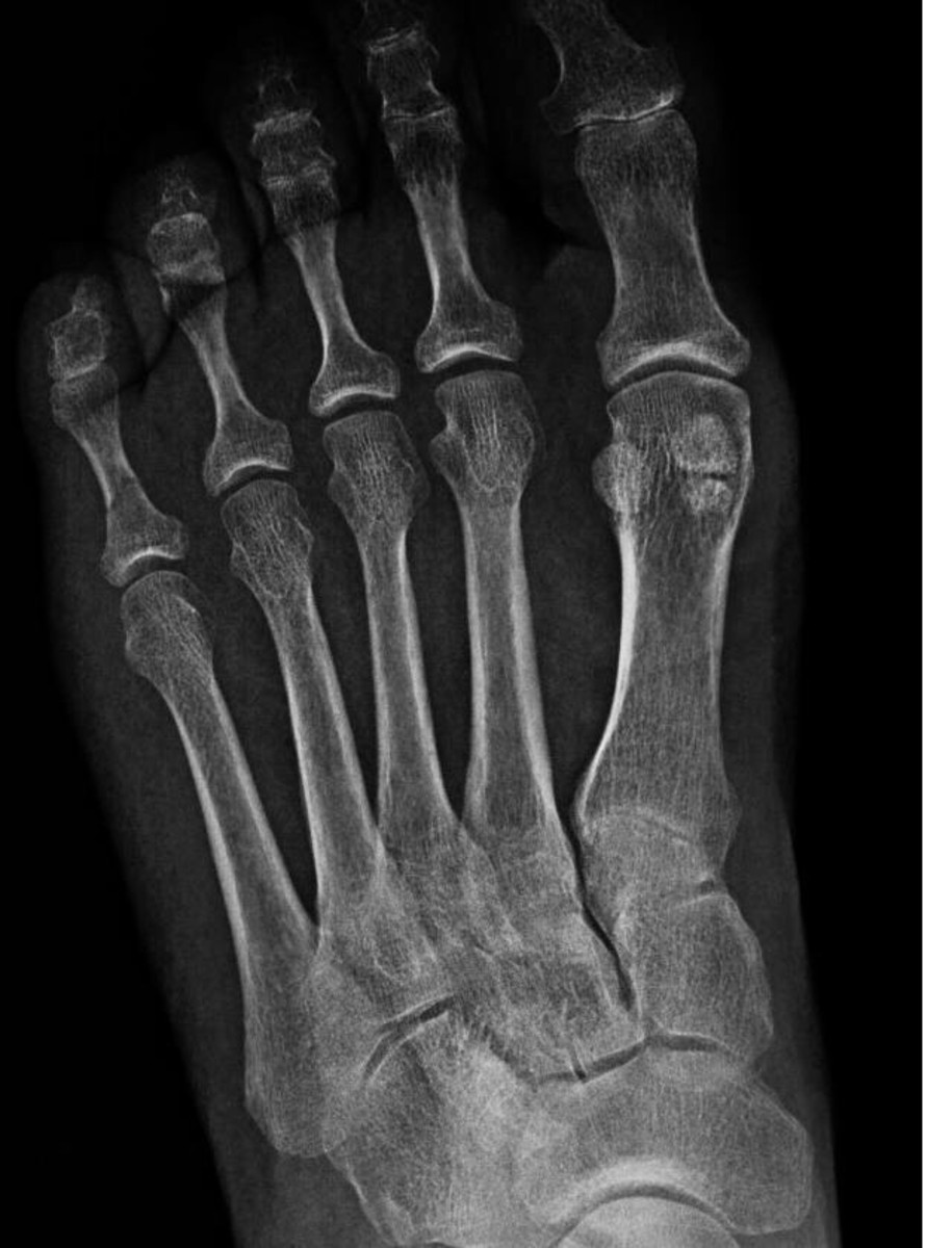 Three small sesamoid bones on a metatarsal bone in the foot
