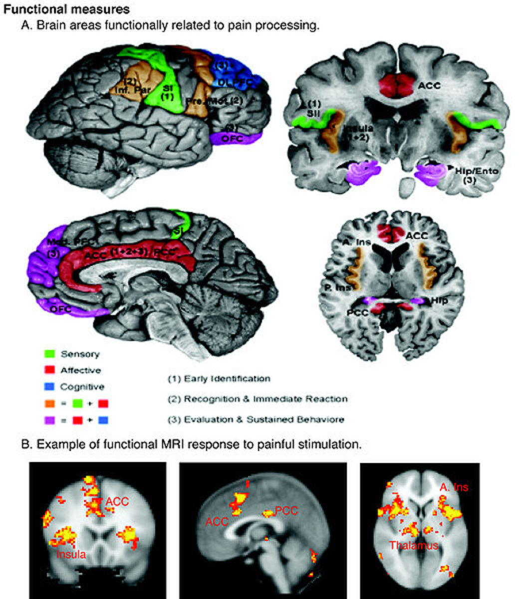 Our brain processes pain in different areas
