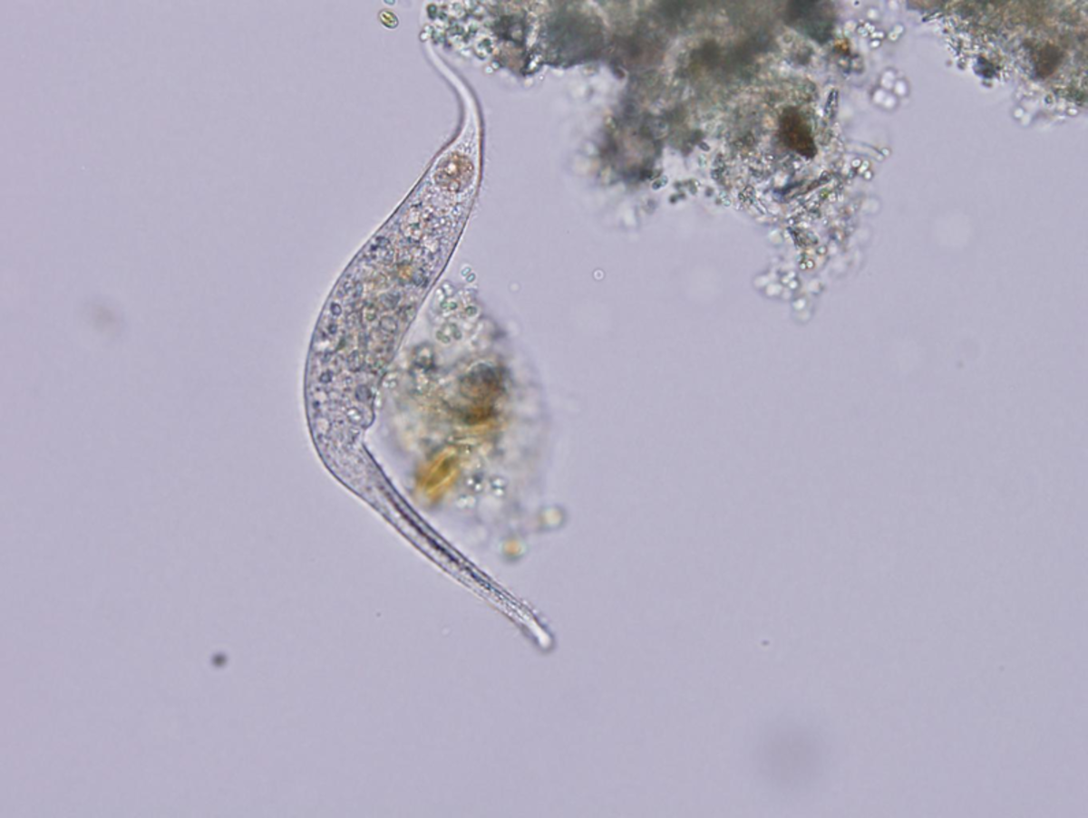 A typical protozoan of a kind commonly found in pond water and seen through a light microscope.