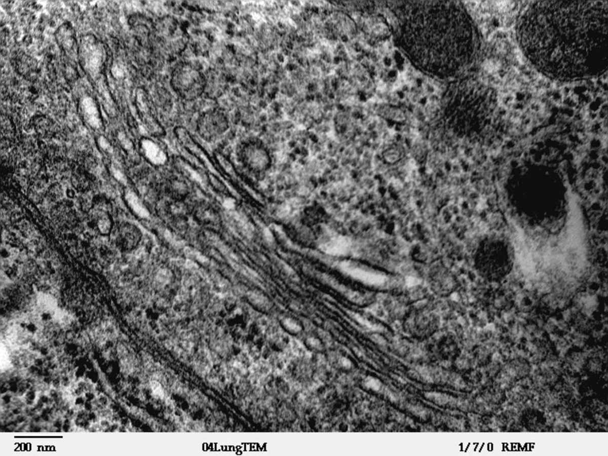 The cytoplasm is the substance within the cell membrane, which holds all the organelles and in which the processes of metabolism take place.