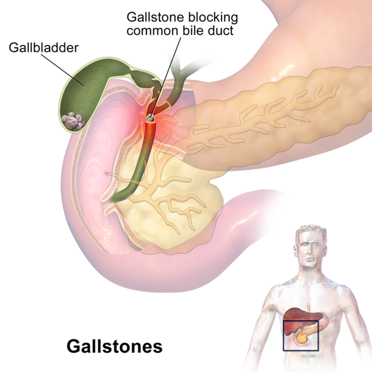 Location of gallstones