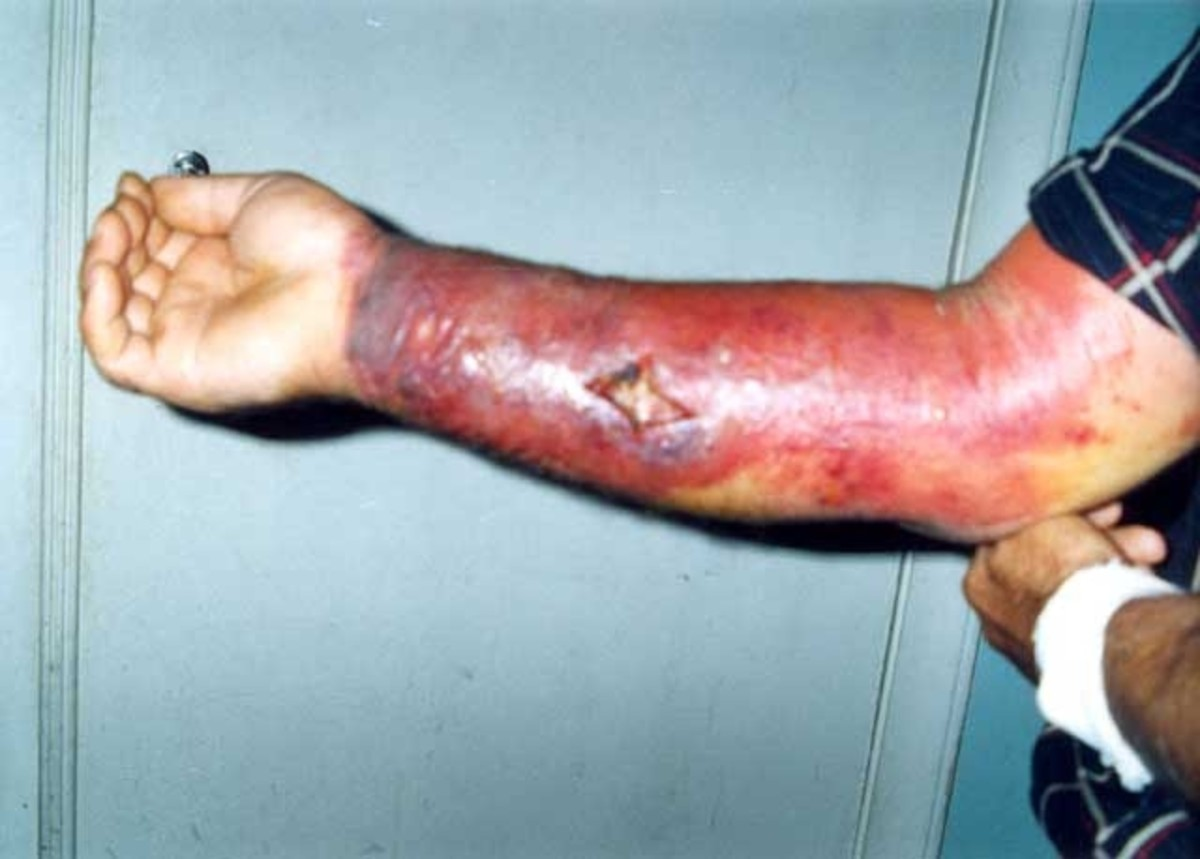 Anthrax infection of the skin caused by contact with anthrax spores.