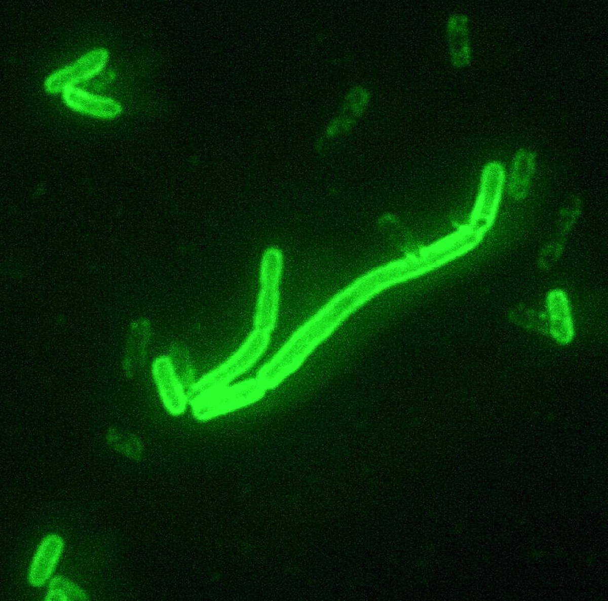 Yersinia pestis cells coloured by a fluorescent stain