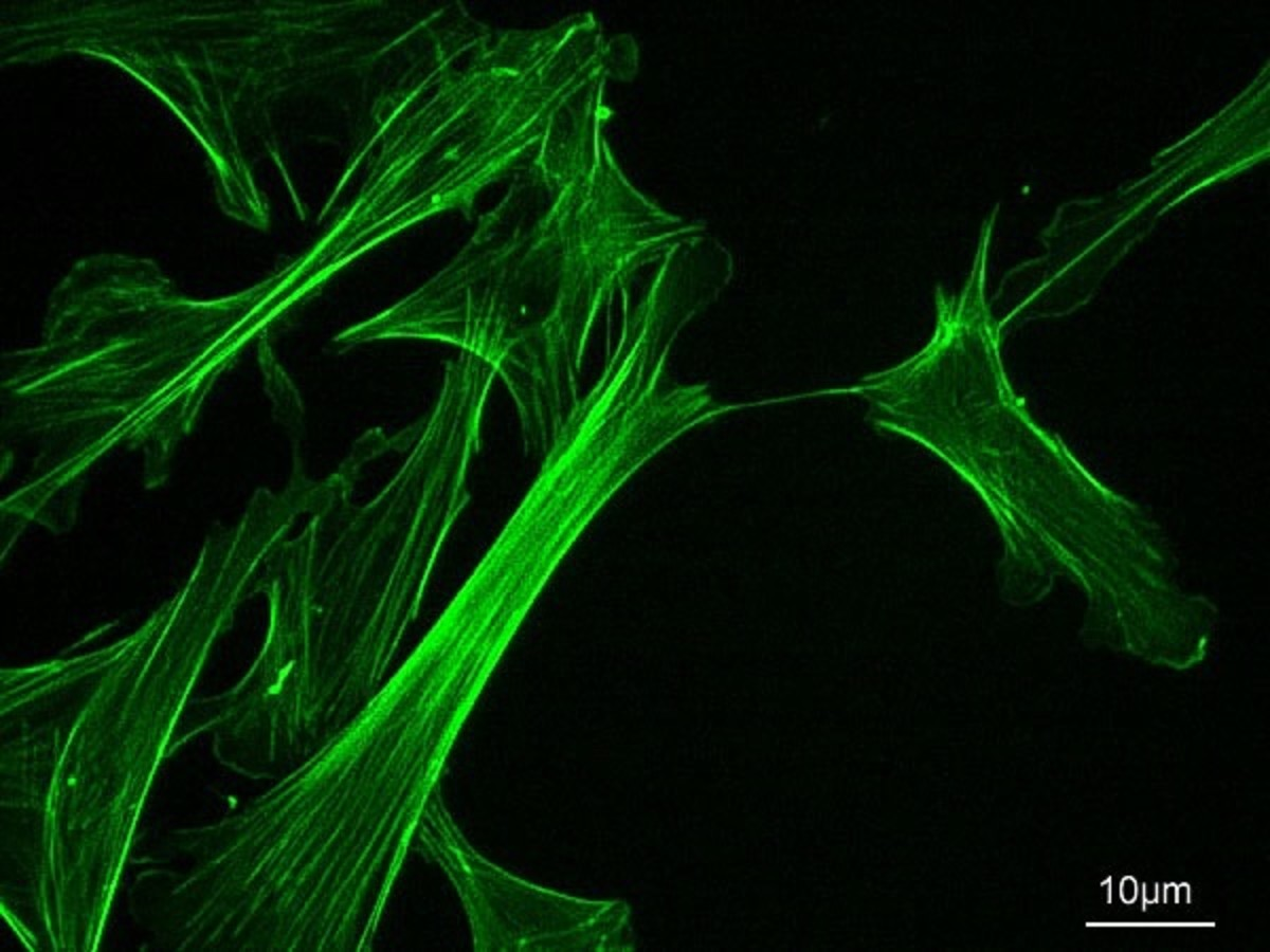 Stained actin microfilaments from a mouse cell