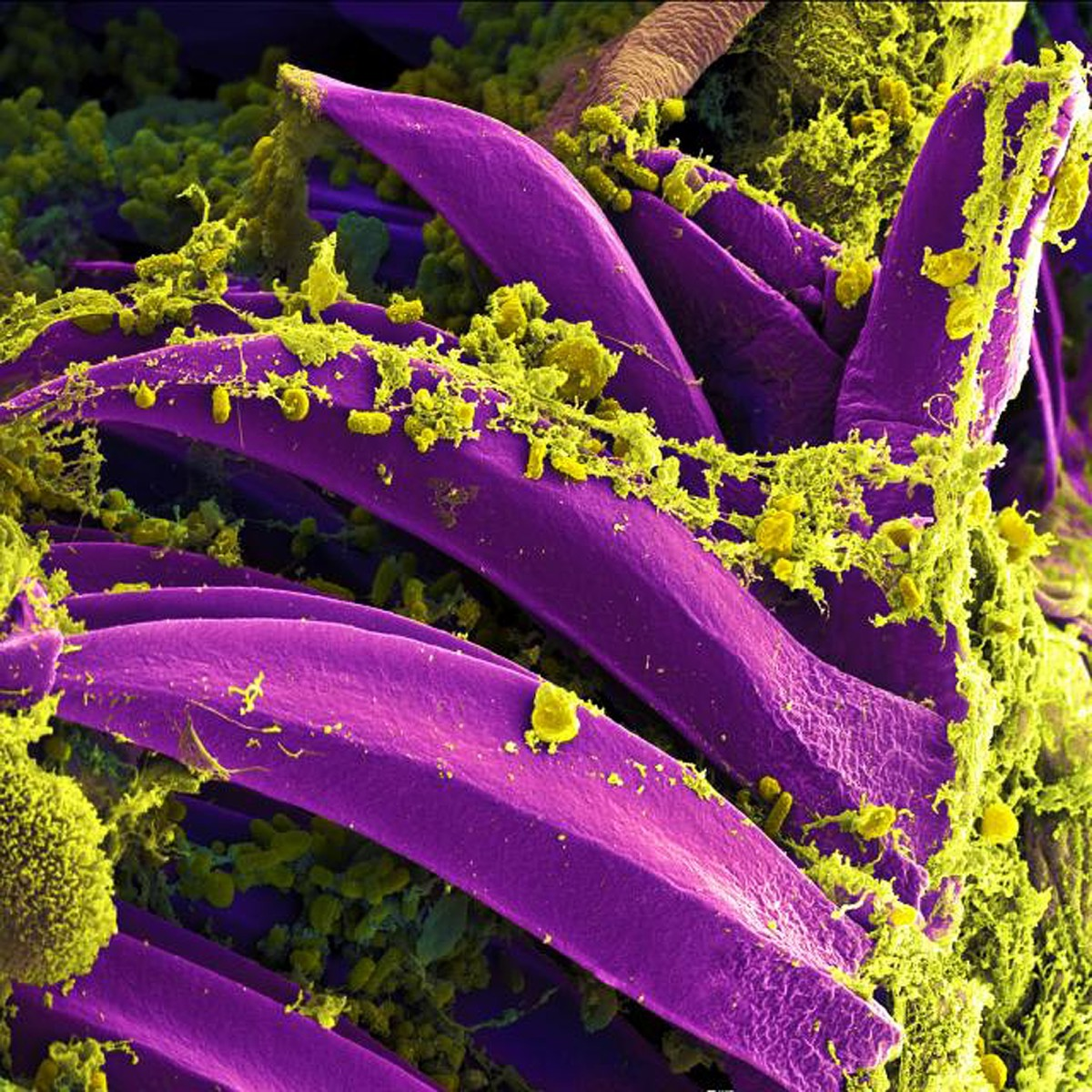 This colourized picture seen through a scanning electron microscope shows Yersinia pestis (yellow) on the spines of the proventriculus, which is part of the digestive tract of a flea. The bacterium secretes a slime that connects its cells.