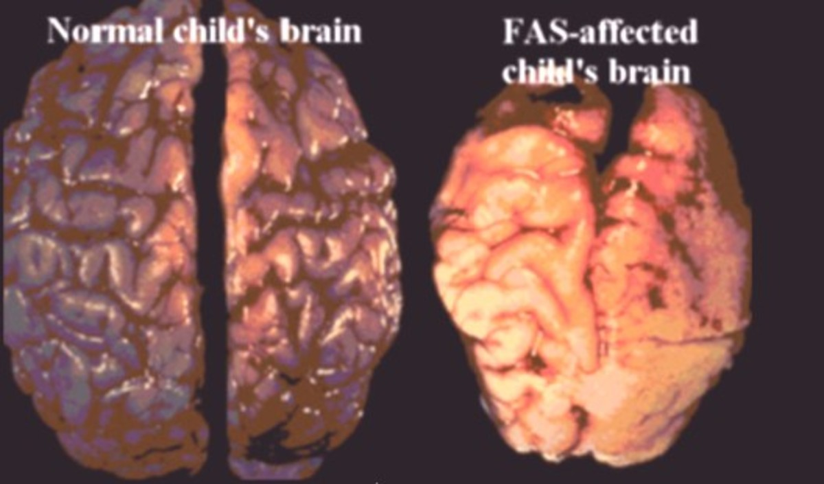 Influence of alcohol during nervous system system development (consumption of alcohol by pregnant mother).