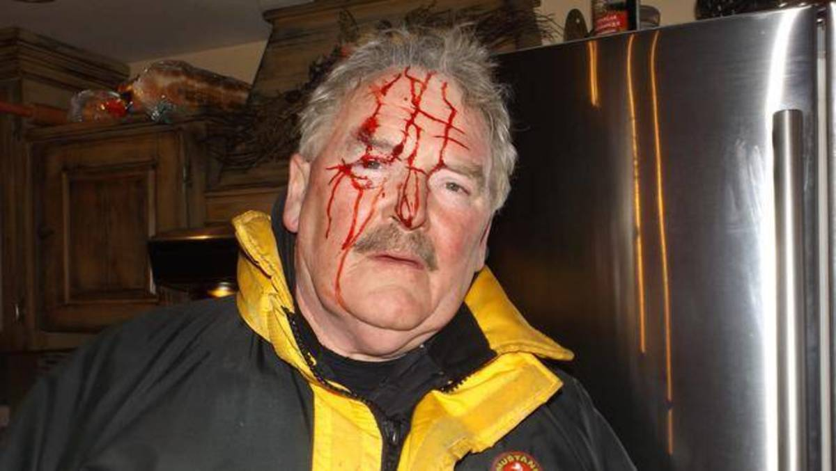 While collecting rabbits from his snares in the woods, this man was attacked by a great horned owl.