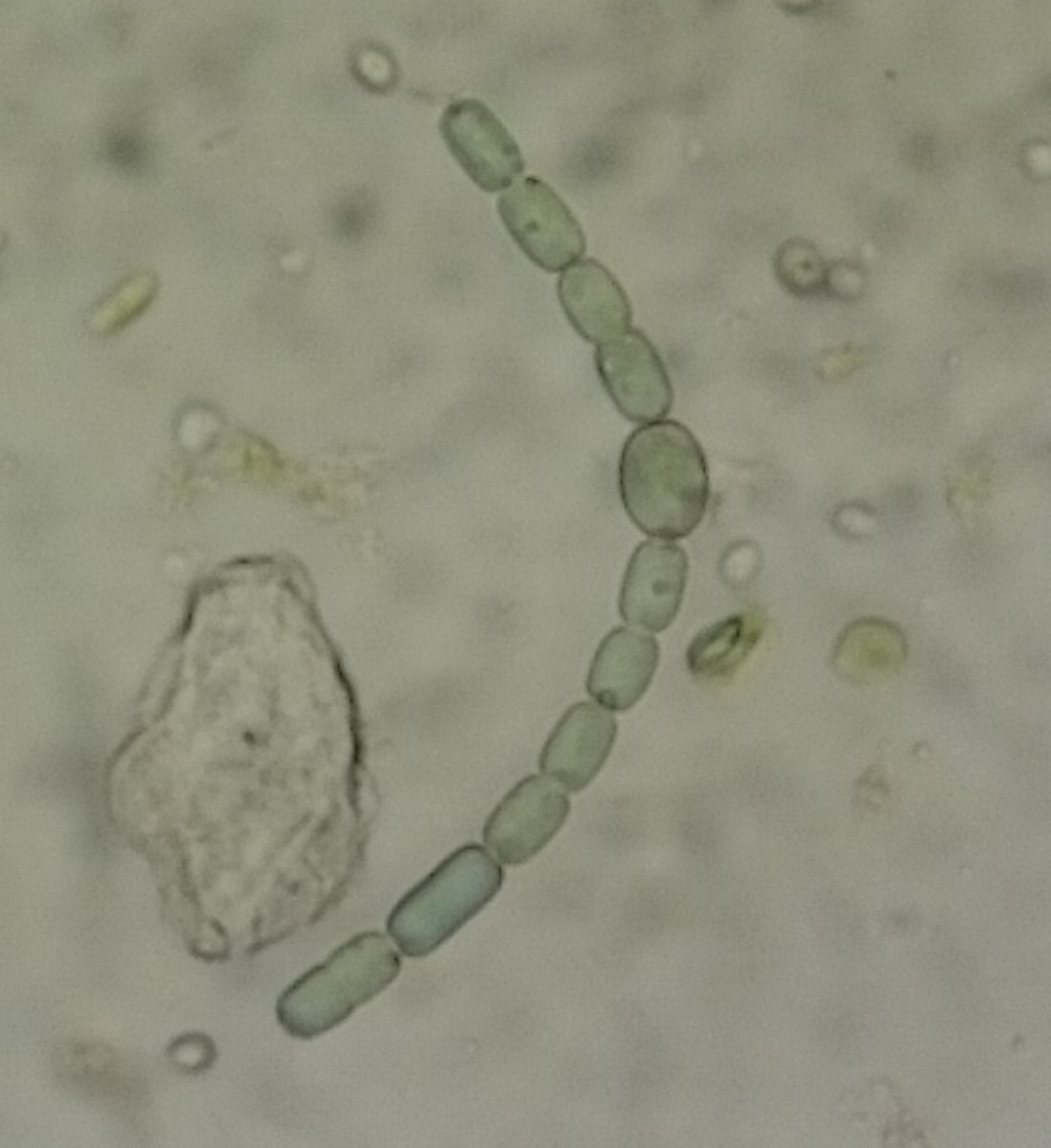 Anabaena azollae, under the microscope.  Photo by atriplex82, courtesy Wikimedia Commons.