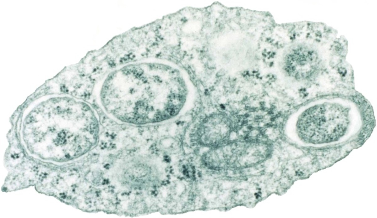 Wolbachia bacteria (inside the circles with white borders) in an insect cell