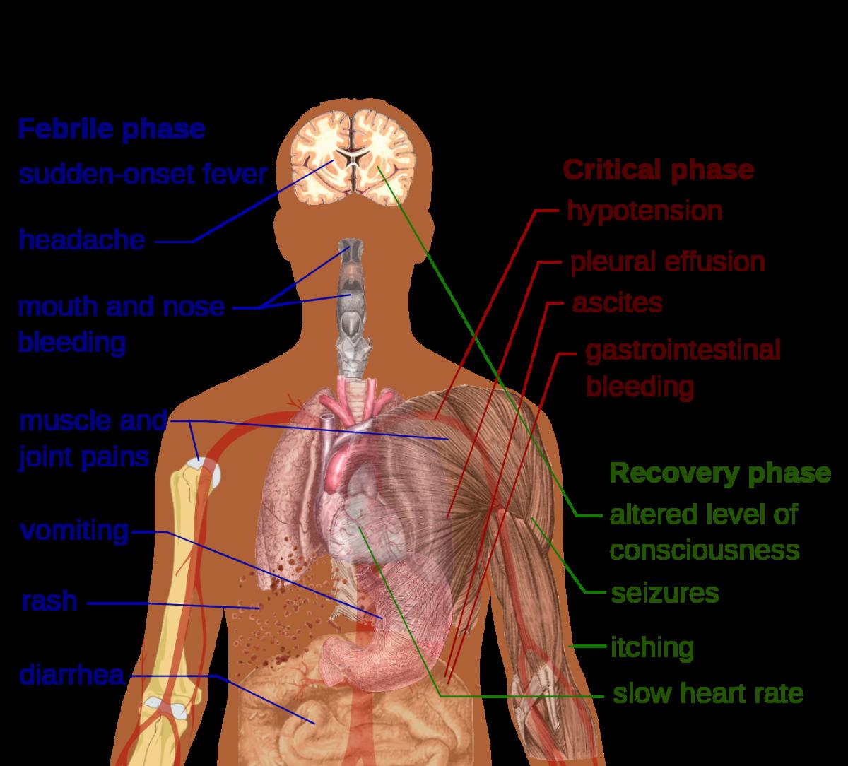 wolbachia-bacteria-may-prevent-mosquito-borne-diseases