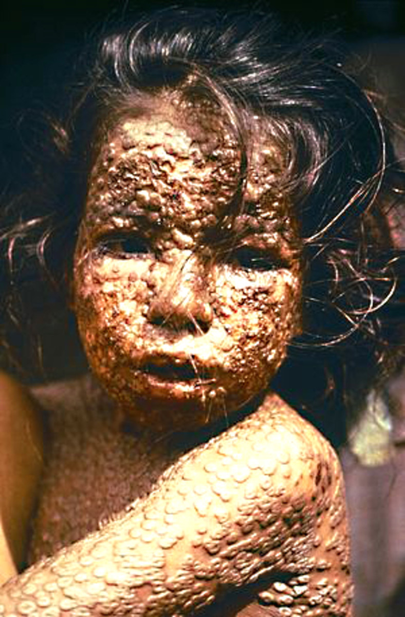 A Bangladeshi child who was affected by smallpox in 1973. Thanks to the work of people like Doctor Donald Henderson and his team, a sight like this will hopefully never be seen again, anywhere in the world
