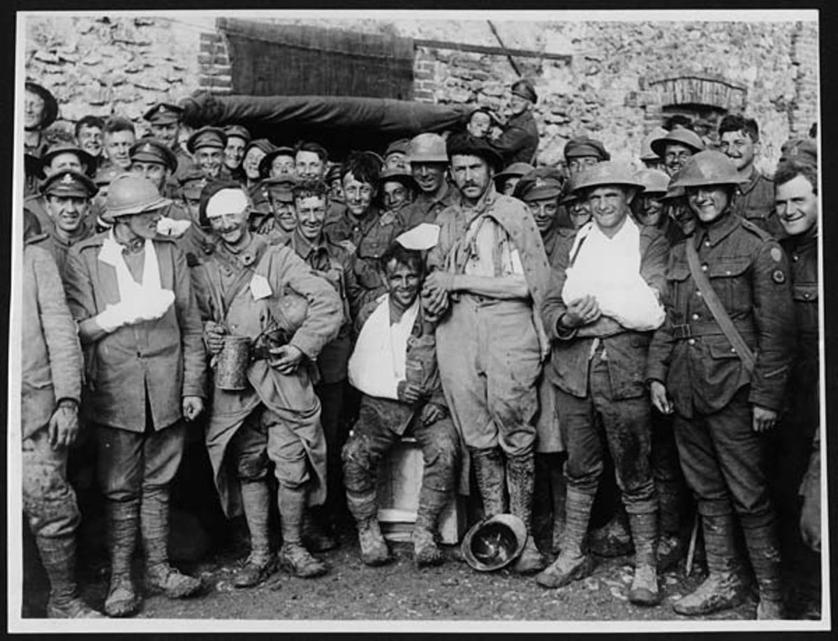 Wounded French, British, and Italian soldiers; many are smiling, no doubt glad to be out of it.