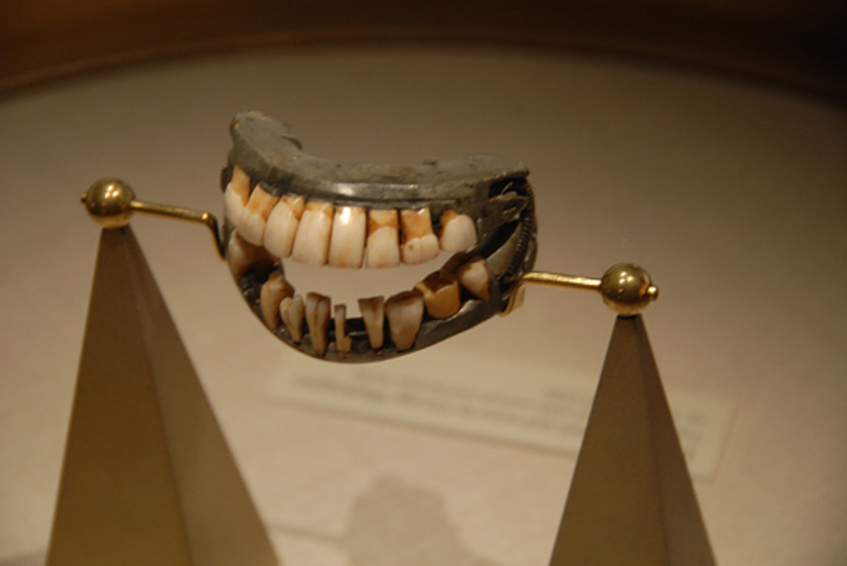 18th-century false teeth. For a while George Washington's false teeth were on display at the Smithsonian.