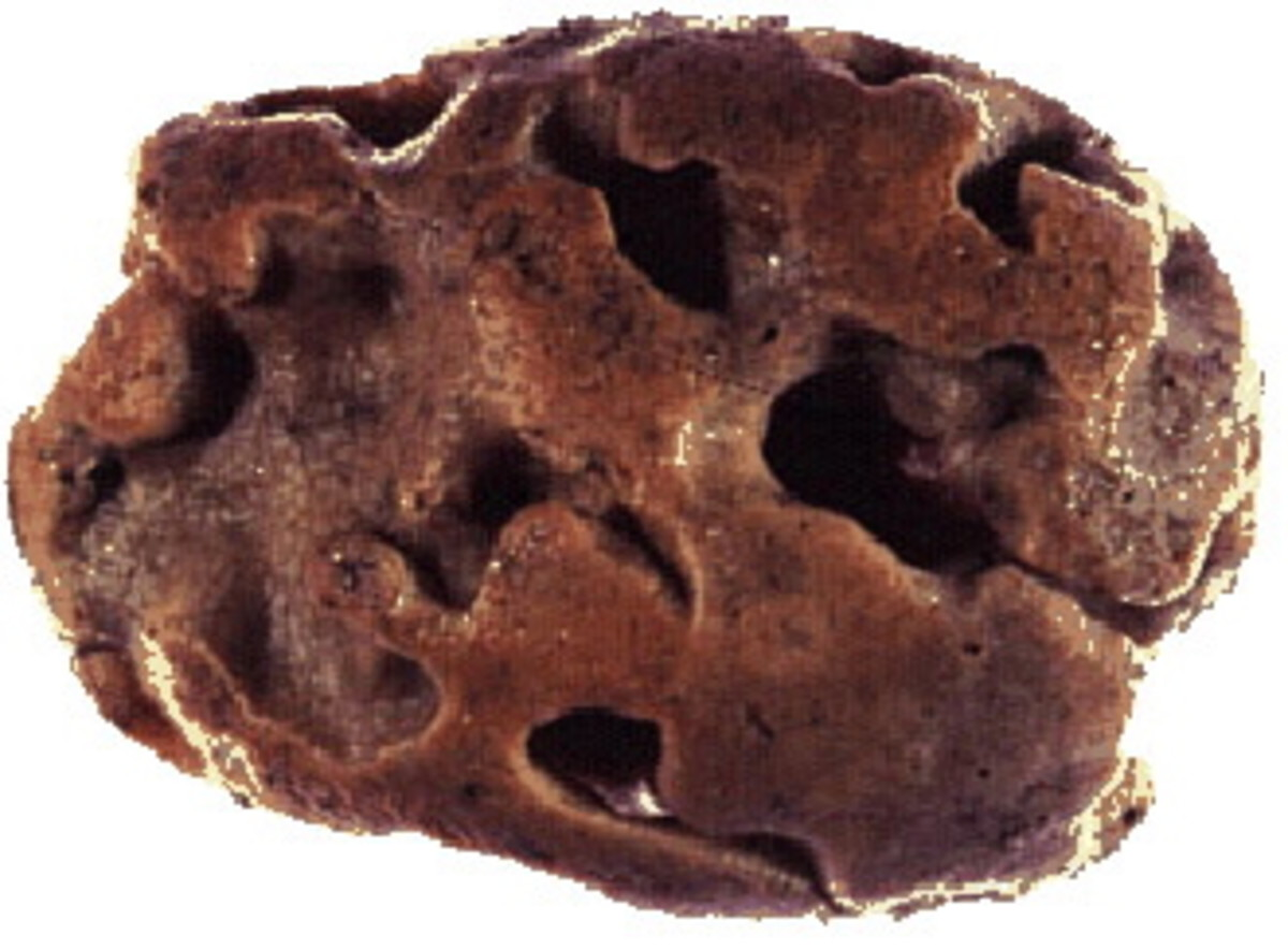 Halichondria belong to genus desmosponges. These sponges are known for their cell-division limiting capacity.
