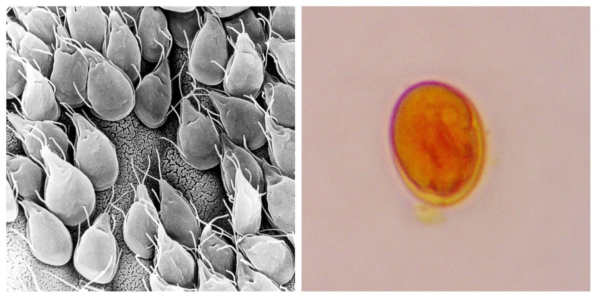 Giardia sp. attached to the intestinal lining of a gerbil (left); a Giardia cyst (right)
