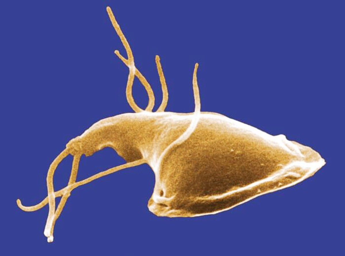 A colorized photo of Giardia from a rat's intestine