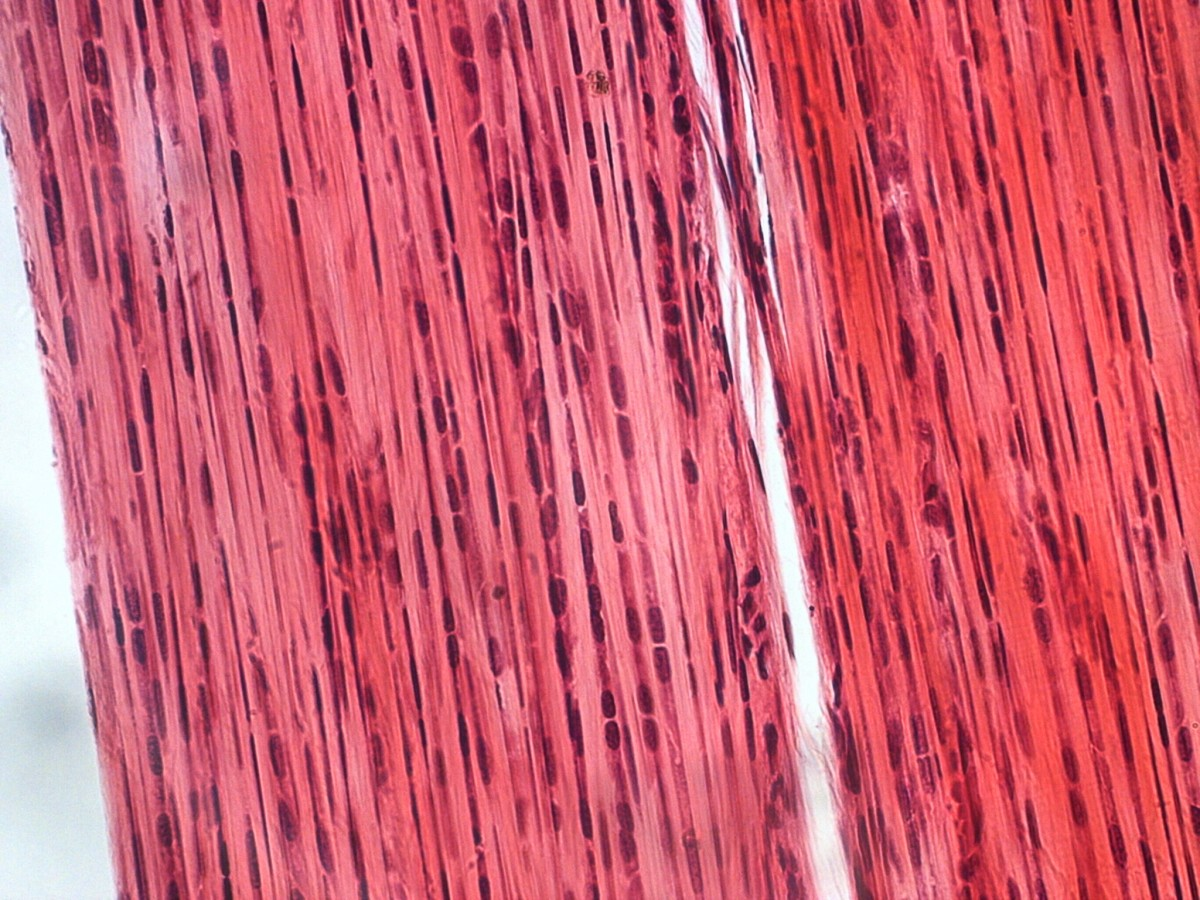 Dense connective tissue as viewed under a compound microscope