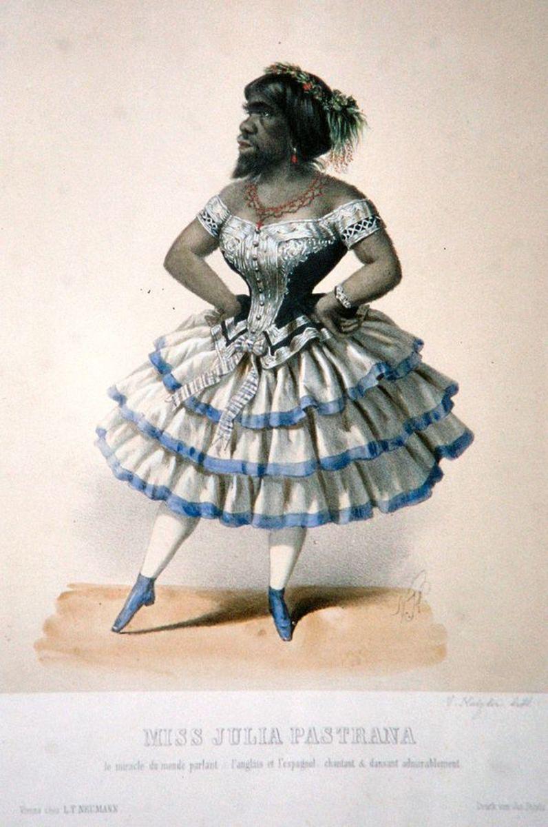 Julia Pastrana, Lithograph Before 1900