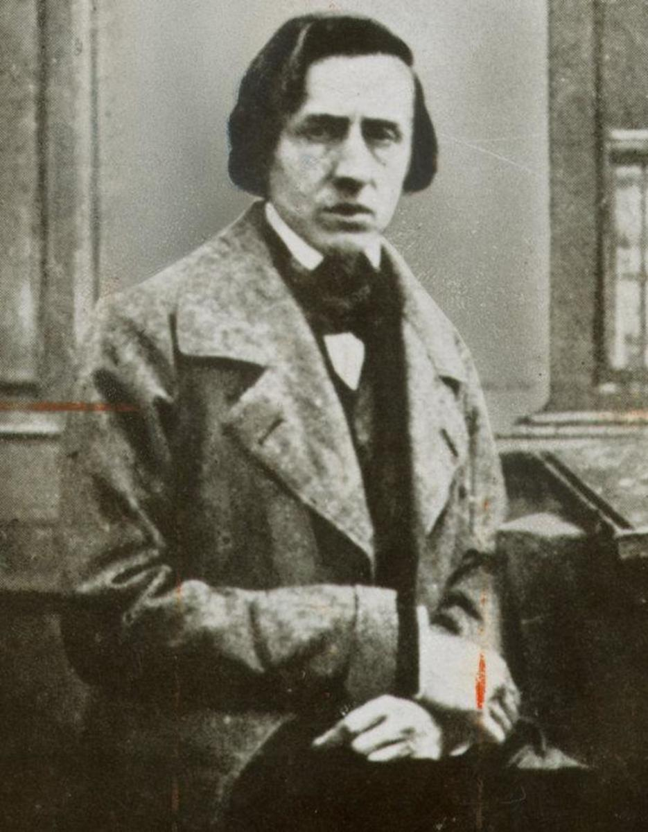 Chopin was young in this photo but his poor health and bad haircut aged him hugely