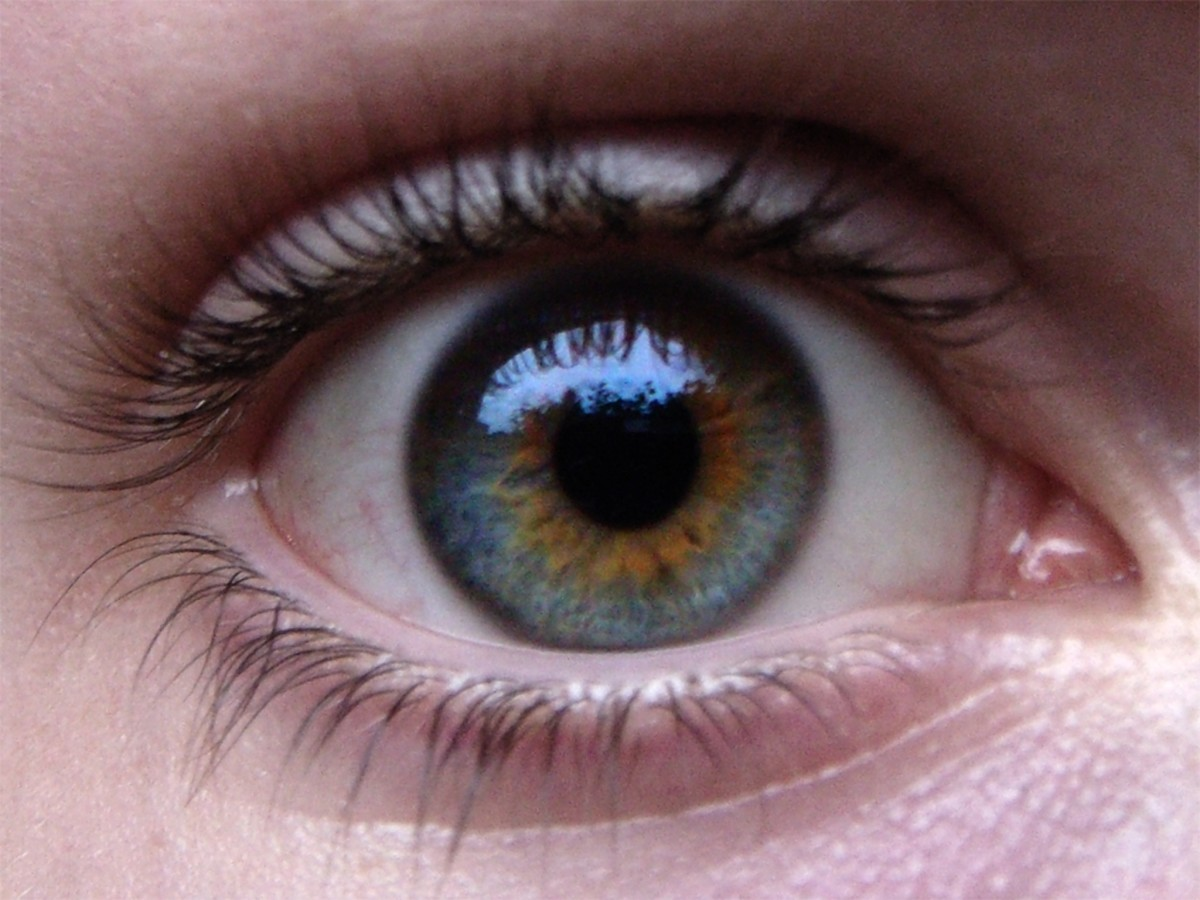 An example of central heterochromia