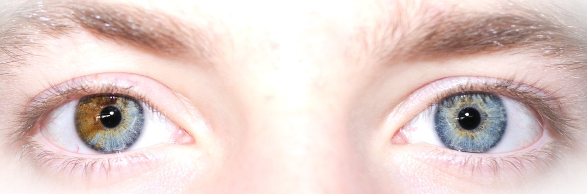 Sectoral heterochromia is probably the most common type of heterochromia