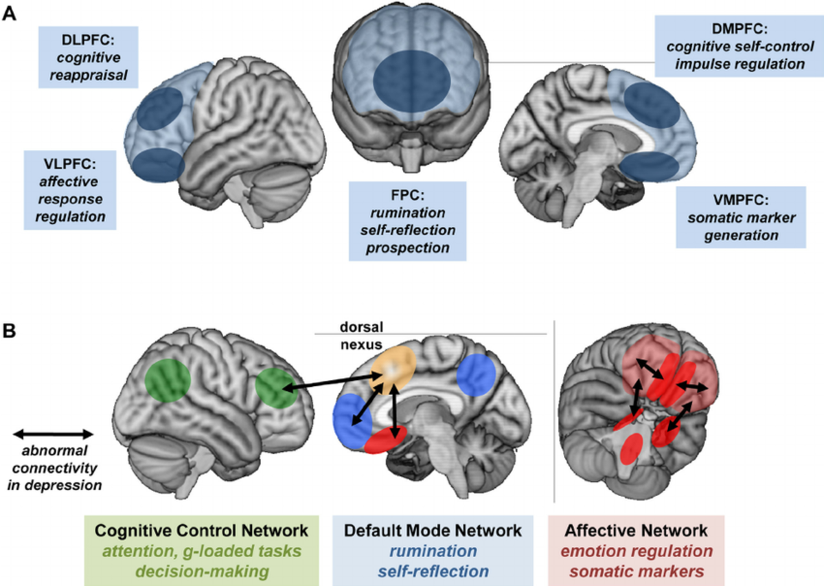 Abnormal neural connectivity in depressed subjects