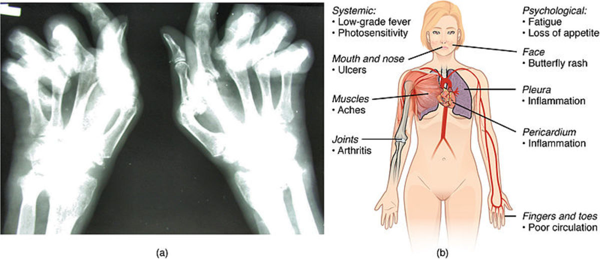 Visualizations of rheumatoid arthritis (left) and lupus (right), both autoimmune disorders.