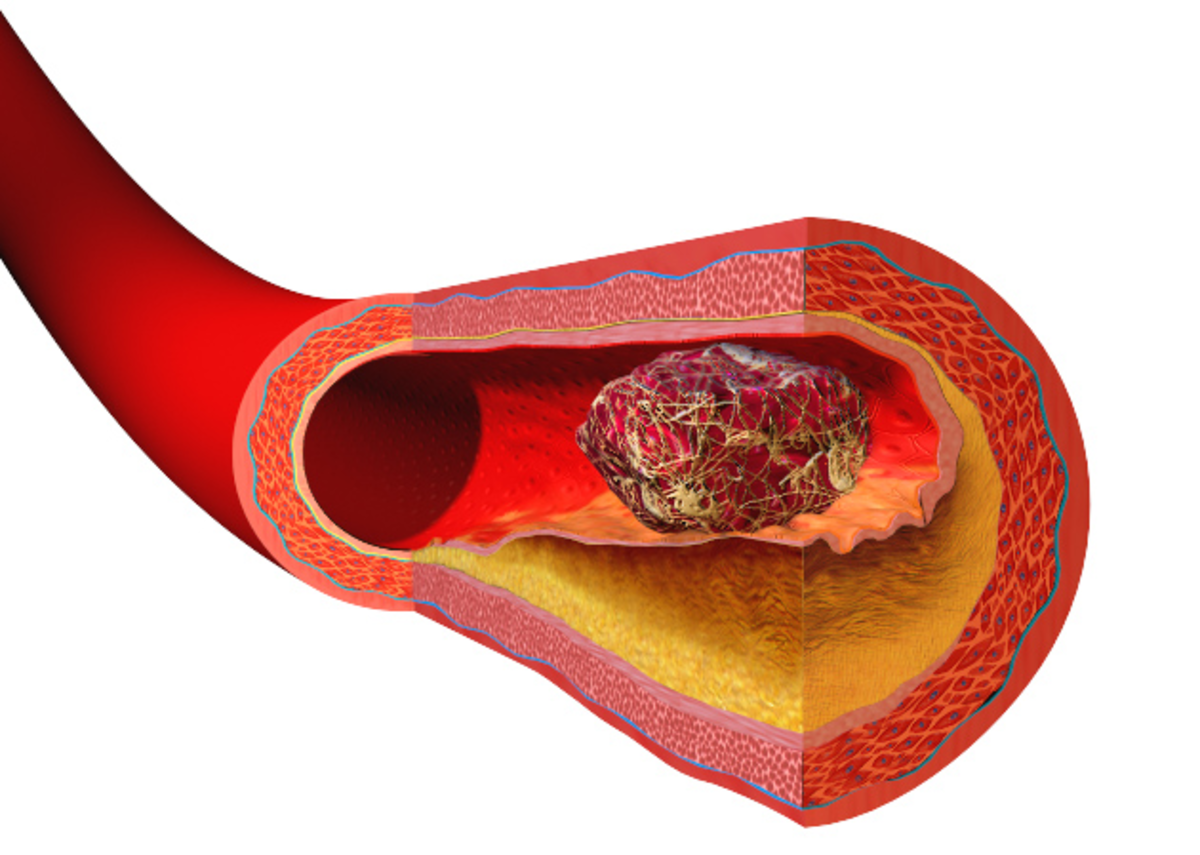 Some archaic alleles contribute to a tendency to form blood clots easily. This can lead to problems with deep vein thrombosis in some individuals.