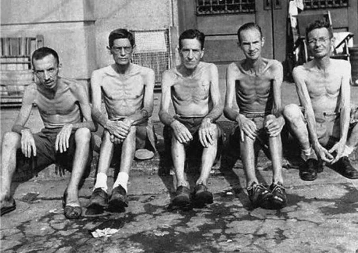 Internees were in poor physical condition.