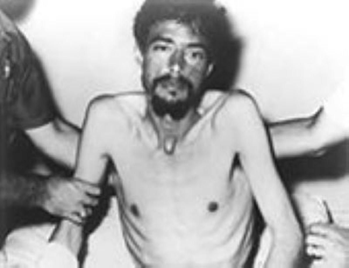 Dieter Dengler after being rescued from the POW camp. Notice Dengler's poor condition and health in this photo, due to both mistreatment and starvation.