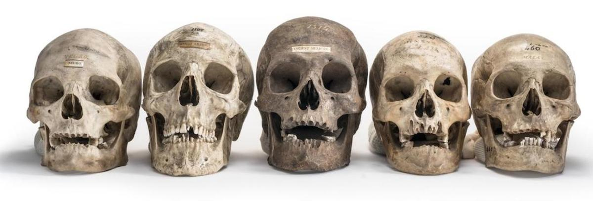Skulls from the collection of Samuel Morton, the father of scientific racism, illustrate his classification of people into five races—which arose, he claimed, from separate acts of creation.