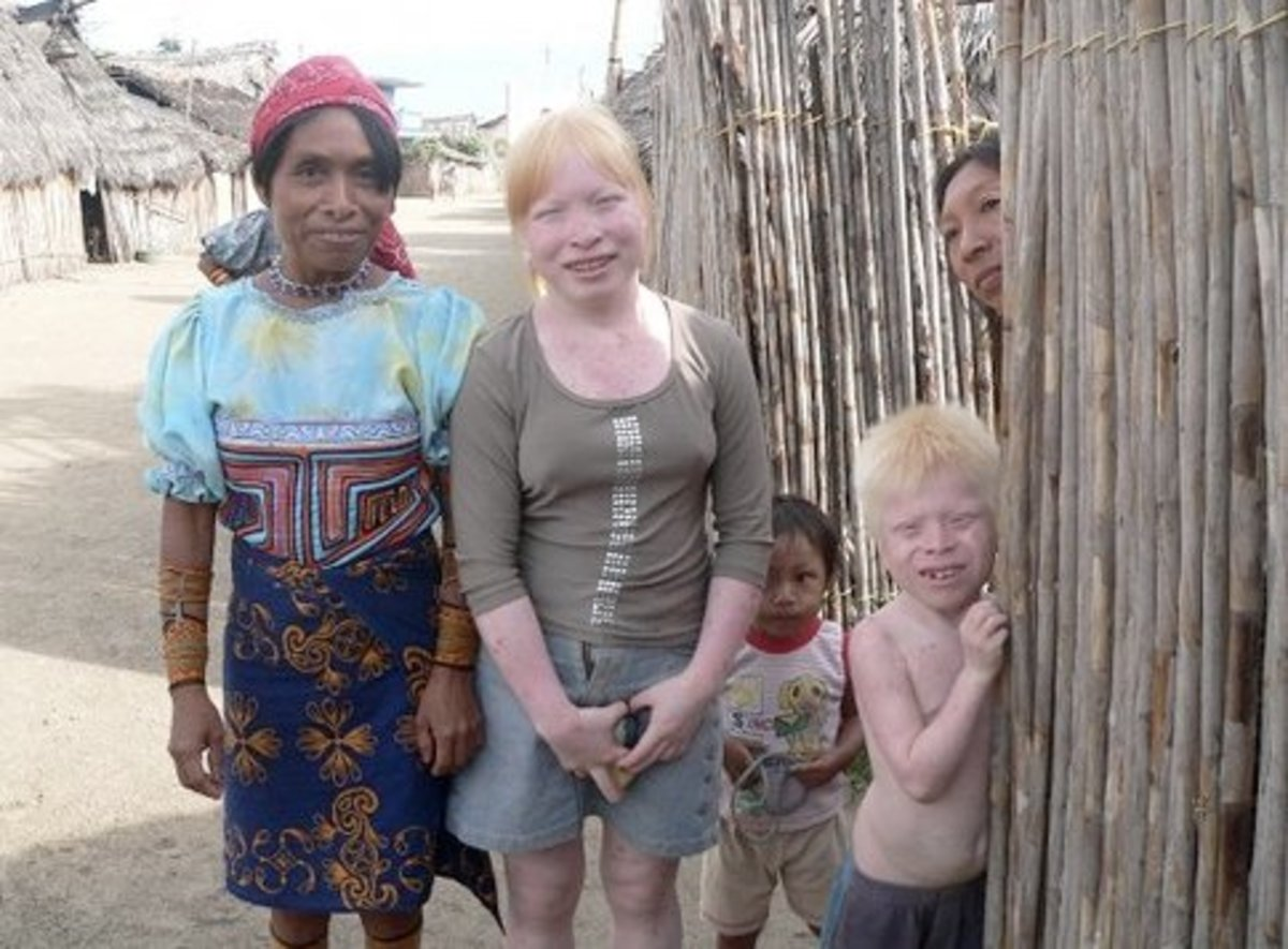 """Deadly tropical sun for the albinos of Panama's ethnic Kuna"" Costa Rica Star News"