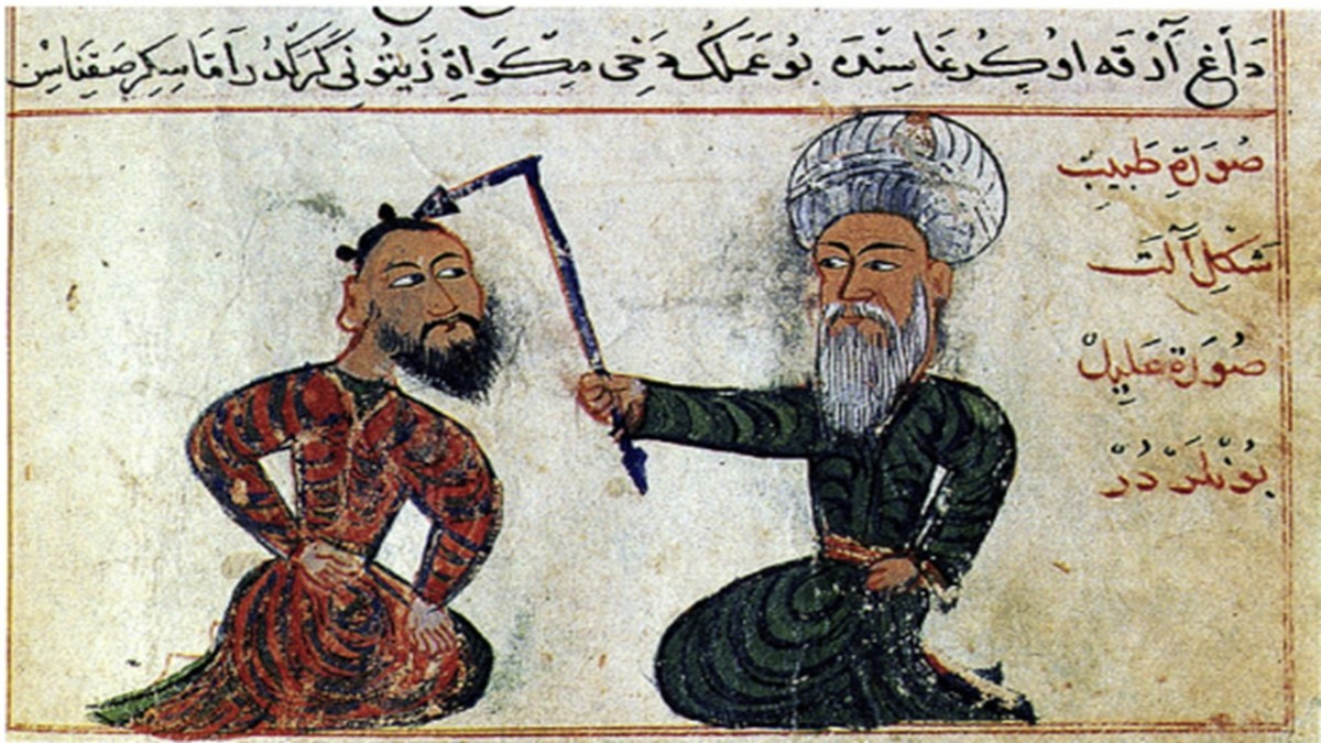 """""""Epilepsy treatment from the surgical atlas Cerrahiyetül Haniye (Imperial surgery). Drawn in the 15th century (1465). Collection: Ataturk Institute for Modern Turkish History, Istanbul, Turkey. Artist: Sefereddin Sabuncuo ğ lu"""" Research Gate"""