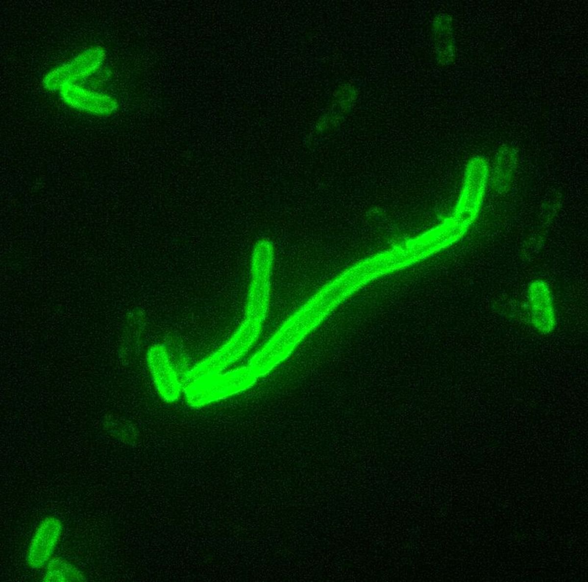 Yersinia pestis viewed with fluorescent lighting (bacteria responsible for the Black Death).
